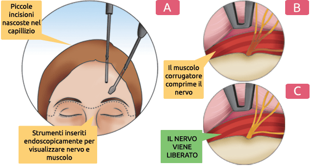 Chirurgia mini invasiva dei nervi sopra orbitali