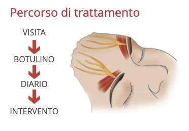 percorso-trattamento-emicrania